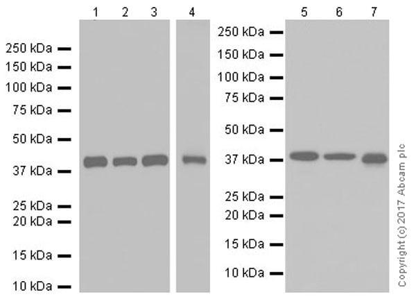 Western blot - Anti-GNAQ antibody [EPR20978] (ab210004)