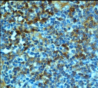 Immunohistochemistry (Formalin/PFA-fixed paraffin-embedded sections) - Anti-CD8 antibody [EP1150Y] - Low endotoxin, Azide free (ab210067)