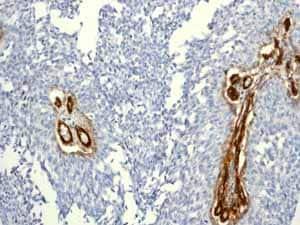 Immunohistochemistry (Formalin/PFA-fixed paraffin-embedded sections) - Anti-CD146 antibody [EPR3208] - BSA and Azide free (ab210072)
