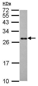 Western blot - Anti-Prohibitin antibody (ab210082)