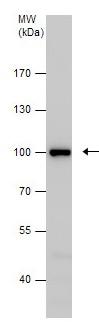 Western blot - Anti-CTNNA1 antibody (ab210097)