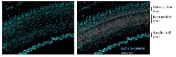 Immunohistochemistry (Frozen sections) - Anti-CTNNA1 antibody (ab210097)