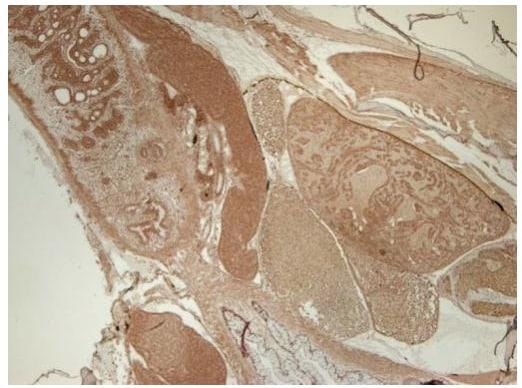 Immunohistochemistry (Formalin/PFA-fixed paraffin-embedded sections) - Anti-CTNNA1 antibody (ab210097)