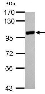 Western blot - Anti-PYGM antibody (ab210100)