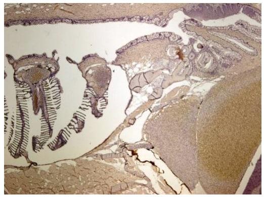 Immunohistochemistry (Formalin/PFA-fixed paraffin-embedded sections) - Anti-PYGM antibody (ab210100)
