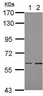 Western blot - Anti-Cytokeratin 8 antibody (ab210106)