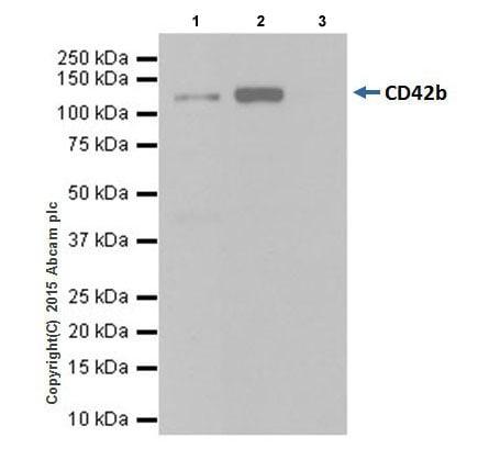 Immunoprecipitation - Anti-CD42b antibody [EPR19204] (ab210407)