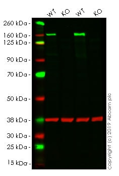 Western blot - Anti-HDAC6 antibody [EPR1698(2)] - BSA and Azide free (ab210472)