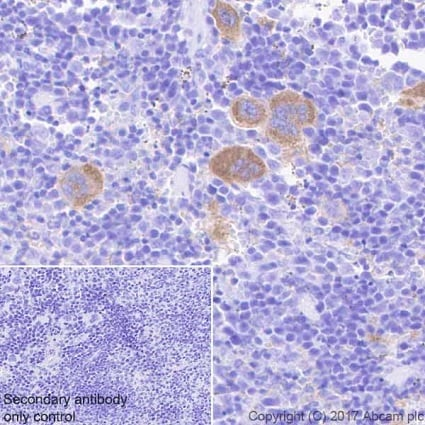 Immunohistochemistry (Formalin/PFA-fixed paraffin-embedded sections) - Anti-Integrin beta antibody [EPR20825] (ab210515)