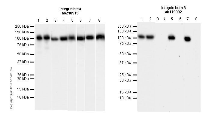 Western blot - Anti-Integrin beta antibody [EPR20825] (ab210515)