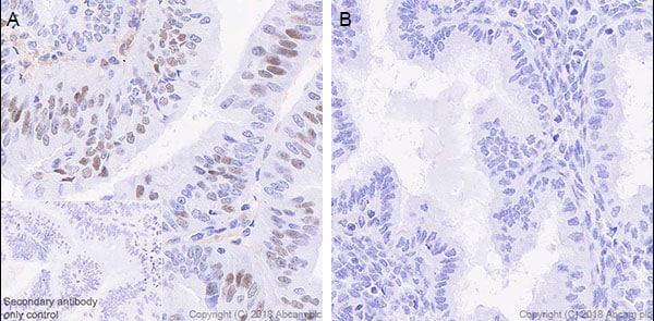 Immunohistochemistry (Formalin/PFA-fixed paraffin-embedded sections) - Anti-STAT1 antibody [EPRR21057-168] (ab210524)