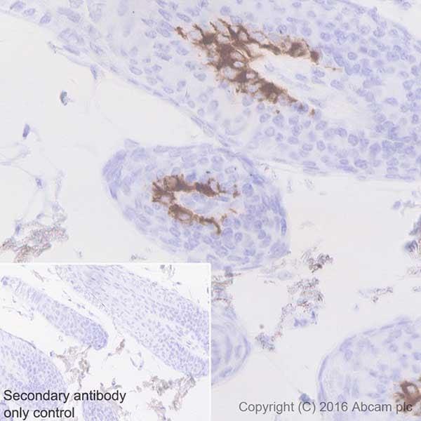 Immunohistochemistry (Formalin/PFA-fixed paraffin-embedded sections) - Anti-MelanA antibody [EPR20380] (ab210546)