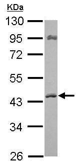 Western blot - Anti-ACAT1 antibody (ab210551)