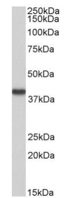 Western blot - Anti-HAO2 antibody (ab210698)