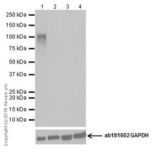 Western blot - Anti-CRISPR-Cas9 antibody [EPR19619-92] (ab210752)