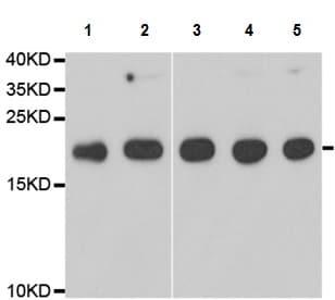 Western blot - Anti-Telethonin antibody (ab210773)