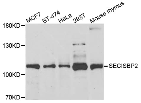 Western blot - Anti-SECISBP2 antibody (ab210791)