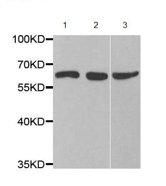 Western blot - Anti-CYP51A1/CYP51 antibody (ab210792)