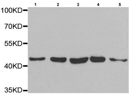 Western blot - Anti-PAICS/PAIS antibody (ab210806)
