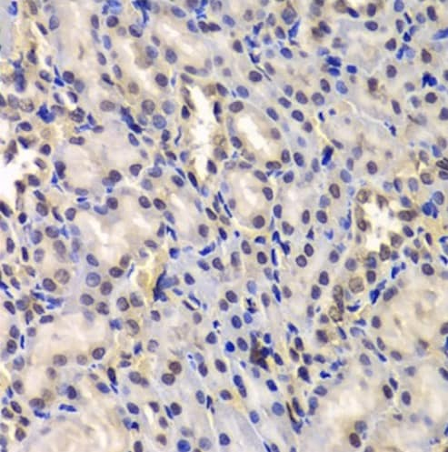 Immunohistochemistry (Formalin/PFA-fixed paraffin-embedded sections) - Anti-DDX41 antibody (ab210809)