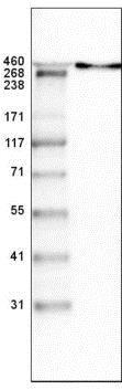 Western blot - Anti-LAMA antibody [CL3087] (ab210954)