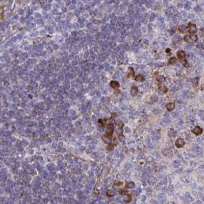 Immunohistochemistry (Formalin/PFA-fixed paraffin-embedded sections) - Anti-C19orf35/PEAK3 antibody (ab210955)