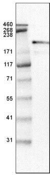 Western blot - Anti-Laminin beta 2 antibody [CL2979] (ab210956)