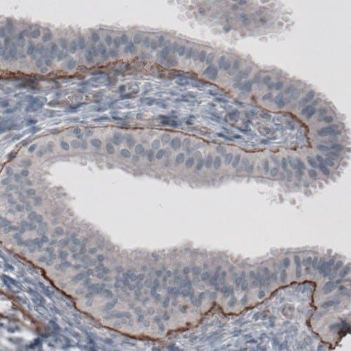 Immunohistochemistry (Formalin/PFA-fixed paraffin-embedded sections) - Anti-Laminin alpha 5/LAMA5 antibody [CL3118] (ab210957)
