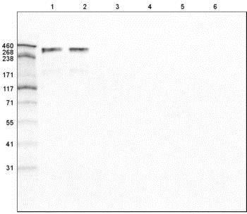 Western blot - Anti-Laminin alpha 5/LAMA5 antibody [CL3118] (ab210957)