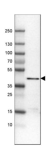 Western blot - Anti-ACAA1/Beta-ketothiolase antibody [CL2650] (ab210961)