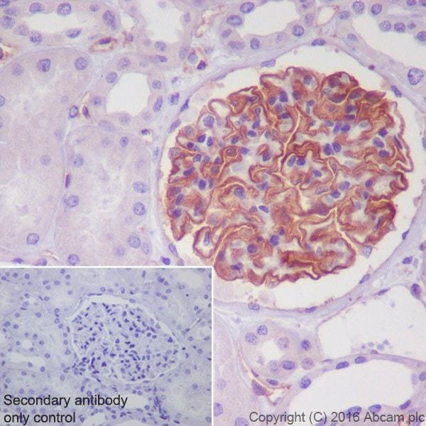 Immunohistochemistry (Formalin/PFA-fixed paraffin-embedded sections) - Anti-Tissue Factor antibody [EPR20369] (ab211016)