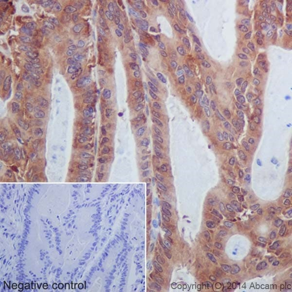 Immunohistochemistry (Formalin/PFA-fixed paraffin-embedded sections) - Anti-MLKL antibody [EPR17514] - BSA and Azide free (ab211045)