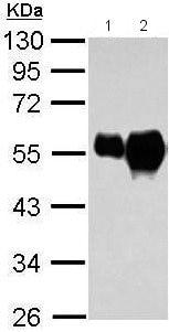 Western blot - Anti-Tubulin antibody - Loading Control (ab211116)