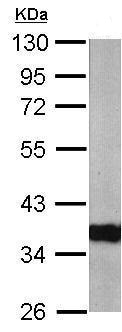 Western blot - Anti-ARPC1A antibody (ab211124)