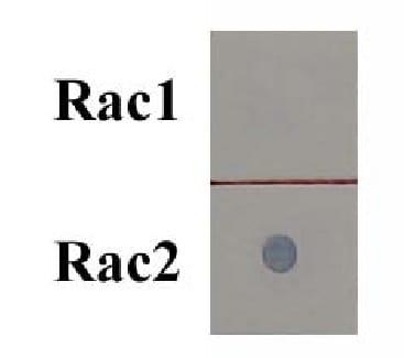 Rac2 Activation Assay Kit (ab211162)