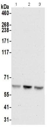 Western blot - Anti-GLMN antibody - C-terminal (ab211267)