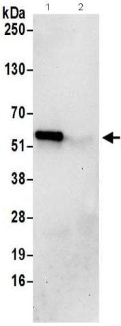 Immunoprecipitation - Anti-PUS3 antibody - C-terminal (ab211270)