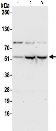 Western blot - Anti-PUS3 antibody - C-terminal (ab211270)