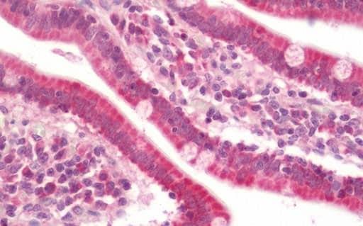 Immunohistochemistry (Formalin/PFA-fixed paraffin-embedded sections) - Anti-DNTTIP1/TDIF1 antibody (ab211284)