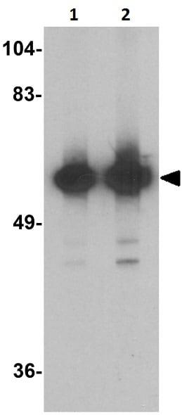 Western blot - Anti-KREMEN1 antibody - C-terminal (ab211285)