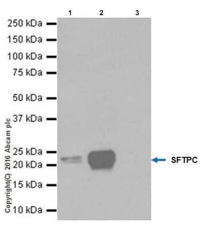 Immunoprecipitation - Anti-SP-C antibody [EPR19839] (ab211326)