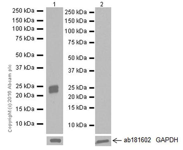 Western blot - Anti-SP-C antibody [EPR19839] (ab211326)