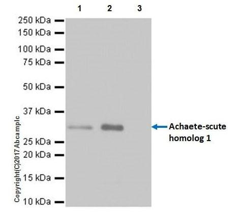 Immunoprecipitation - Anti-MASH1/Achaete-scute homolog 1 antibody [EPR19840] (ab211327)