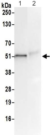 Immunoprecipitation - Anti-NXN/NRX antibody (ab211336)