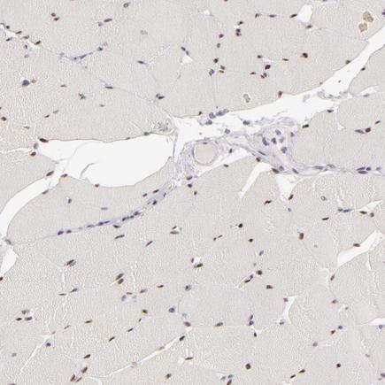 Immunohistochemistry (Formalin/PFA-fixed paraffin-embedded sections) - Anti-SIX1 antibody (ab211359)