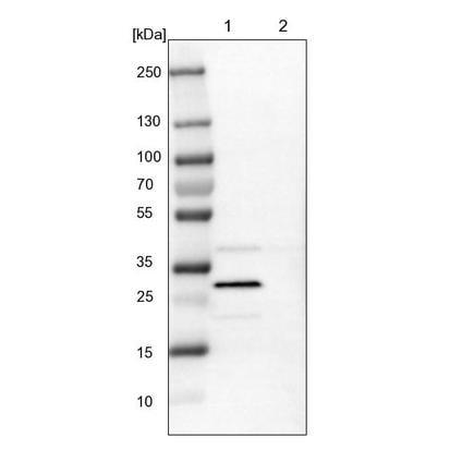 Western blot - Anti-SIX1 antibody (ab211359)