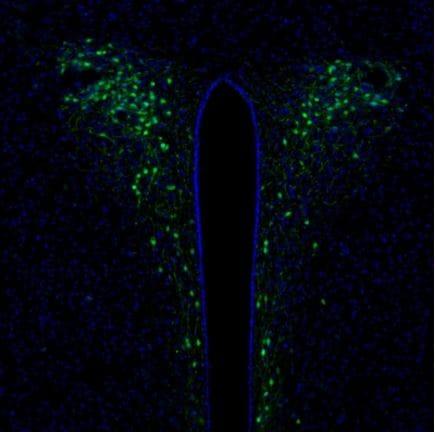 Immunohistochemistry (Formalin/PFA-fixed paraffin-embedded sections) - Anti-SCGN/Secretagogin antibody (ab211362)