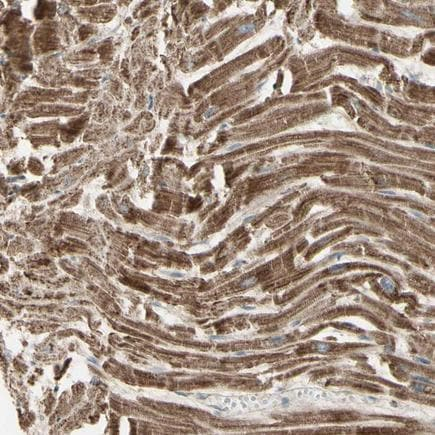 Immunohistochemistry (Formalin/PFA-fixed paraffin-embedded sections) - Anti-MIRO1 antibody (ab211363)