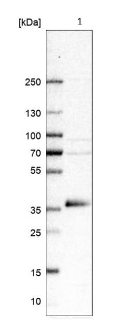 Western blot - Anti-GDF15 antibody (ab211364)