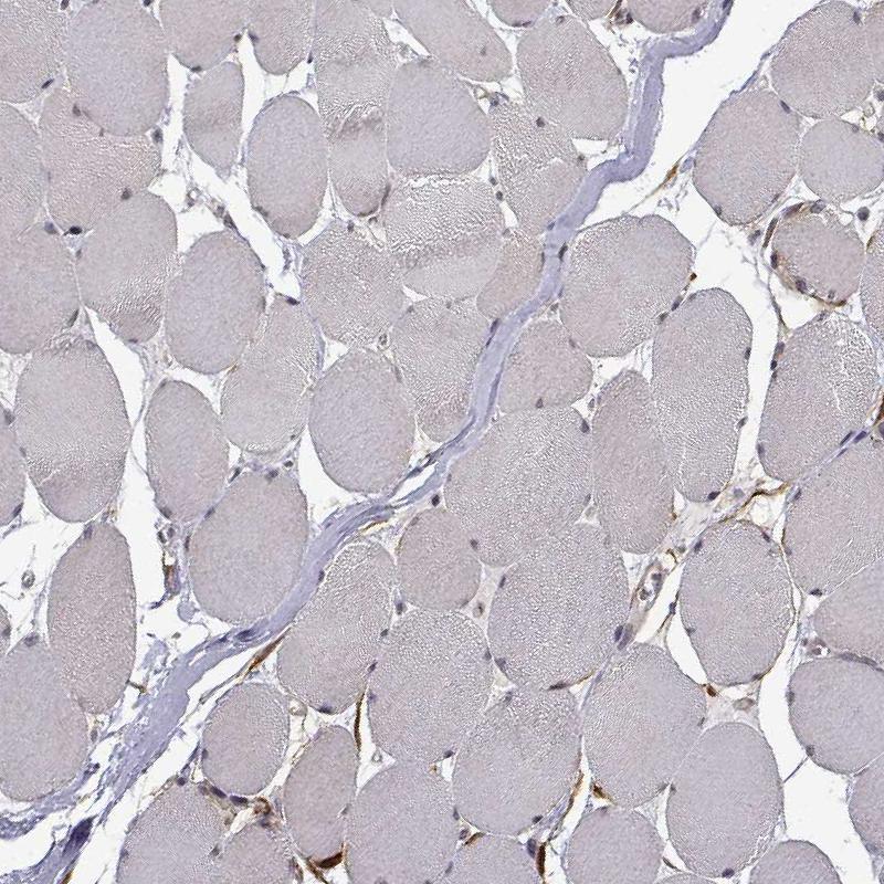 Immunohistochemistry (Formalin/PFA-fixed paraffin-embedded sections) - Anti-PHGDH/Malate dehydrogenase antibody (ab211365)